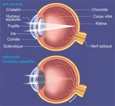 explication_cataracte1